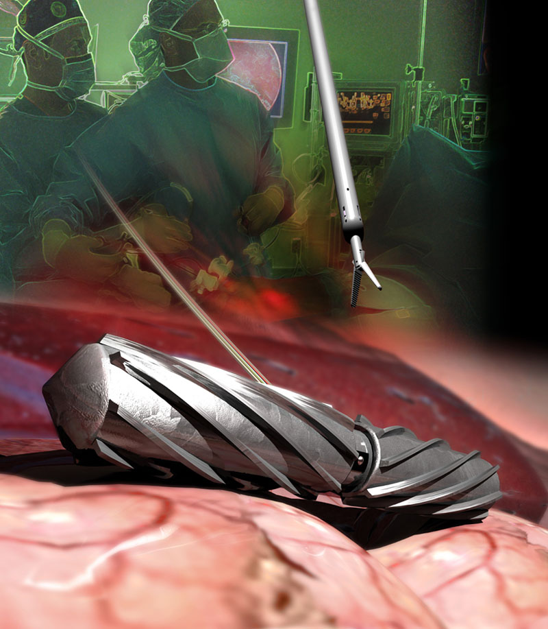 image from Surgical robots